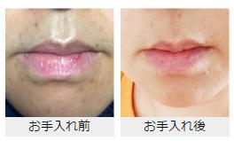 髭の抑毛をした女性の比較写真