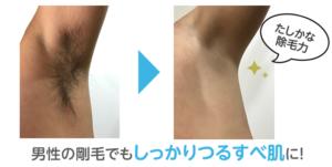 脇毛を除毛前と除毛後を比較した写真