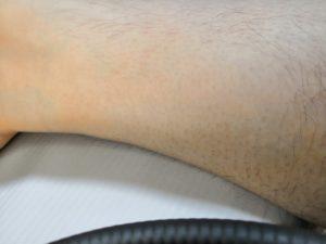 スルル除毛クリームで除毛した後の男性の足