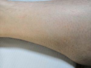 スルル除毛クリームとカミソリで処理した後の違いを比較する男性の足