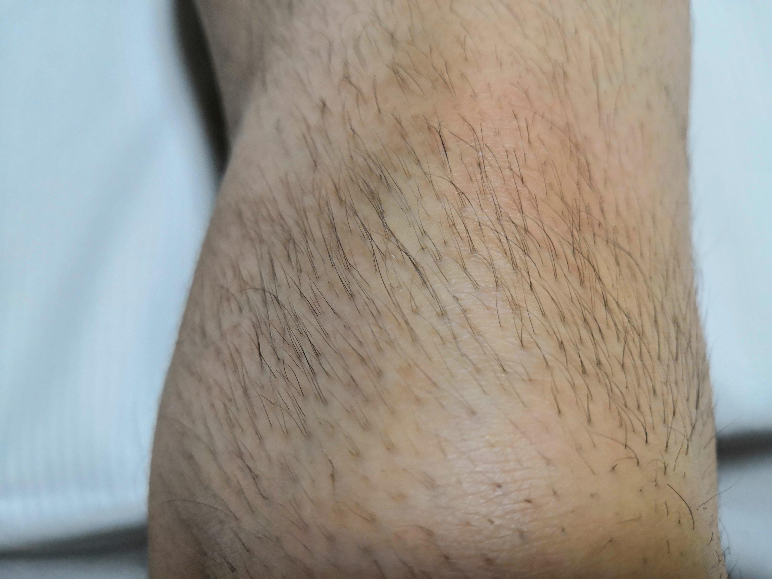 体毛が濃く剛毛な男性の膝