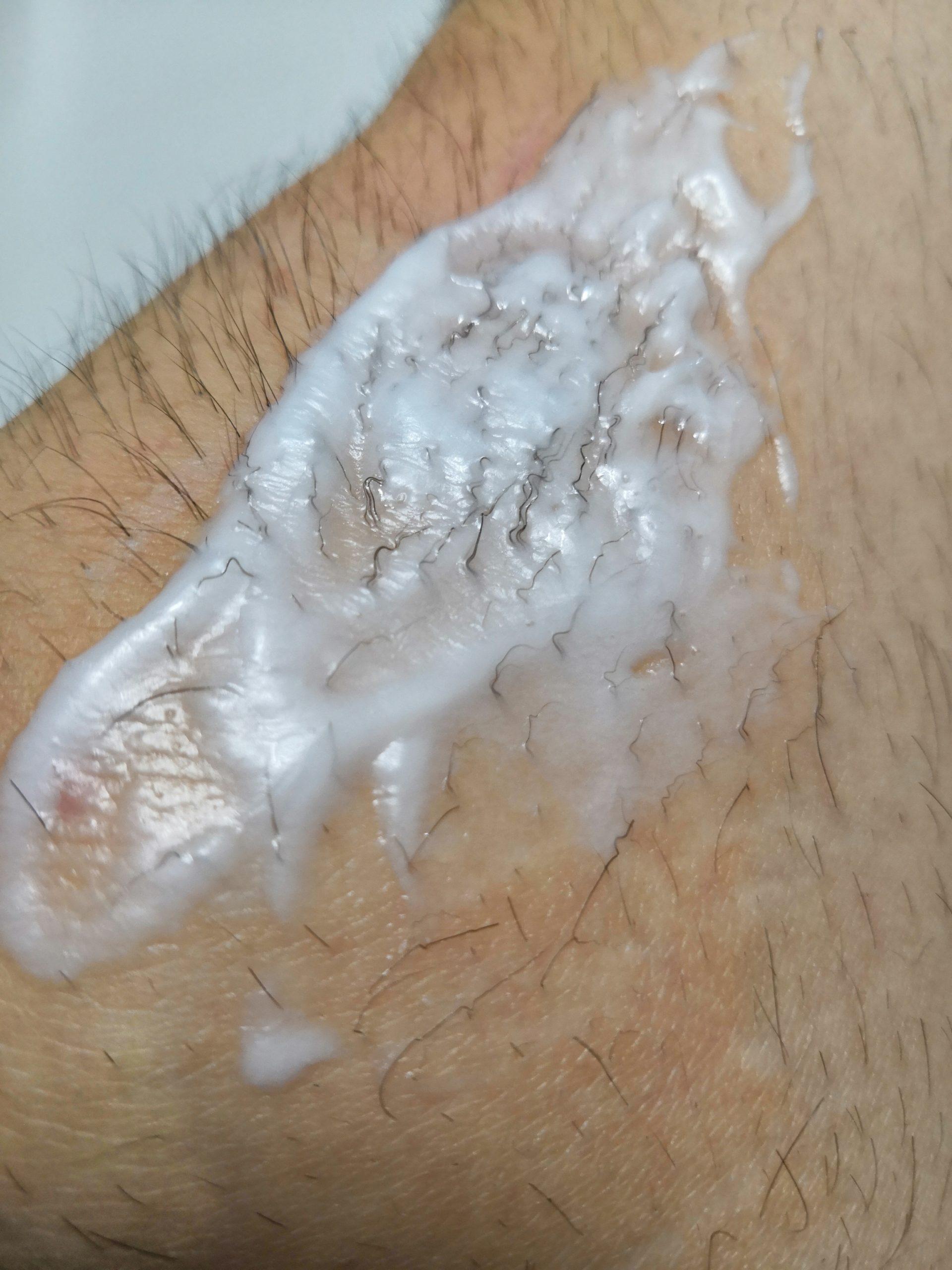 体毛が濃い男性の膝にちゅらりもを塗って数分後毛が縮れている様子