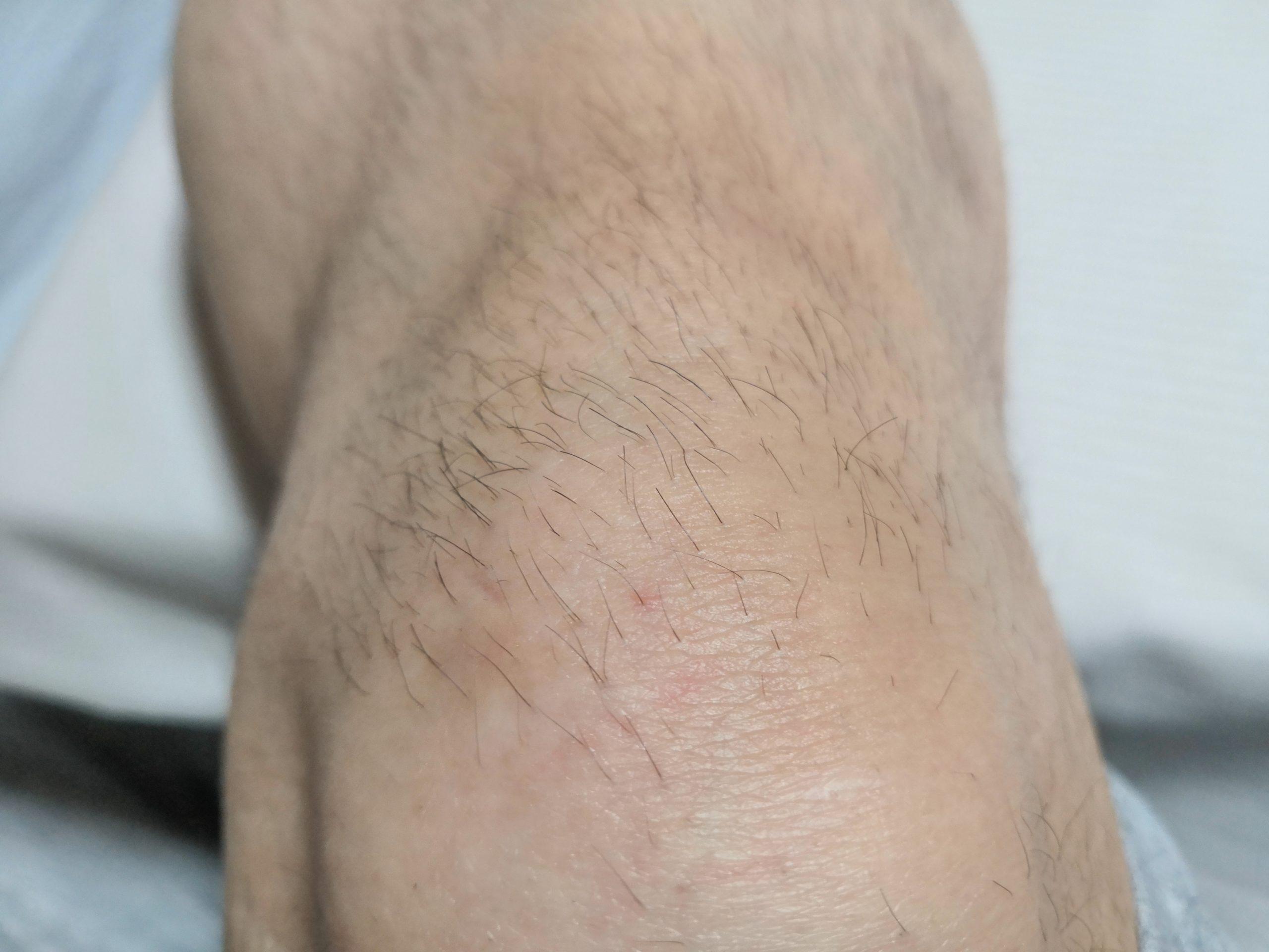 ちゅらりもを使い続けて膝の毛が薄くなってきた男性の膝